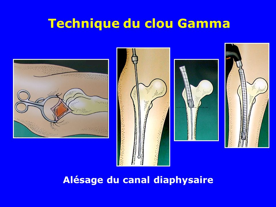Technique du clou Gamma