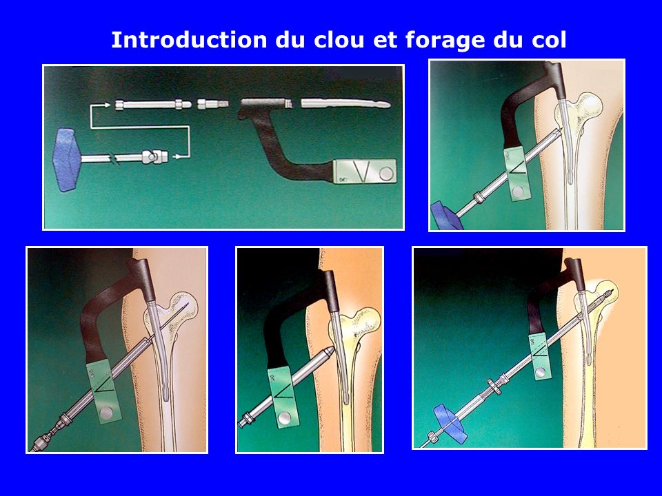 Introduction du clou et forage du col