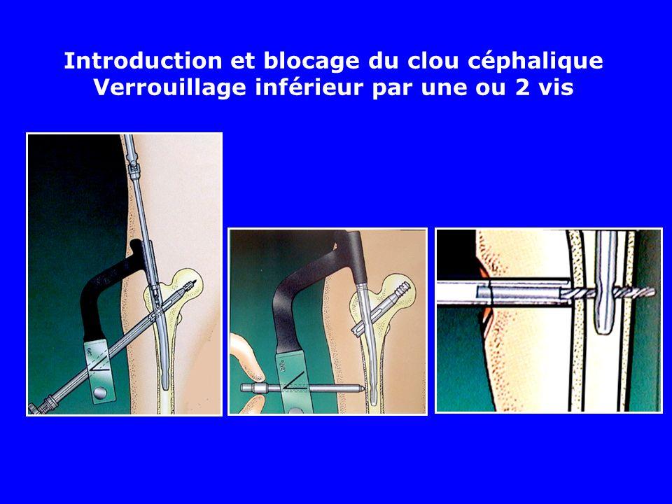 Introduction et blocage du clou céphalique Verrouillage inférieur par une ou 2 vis