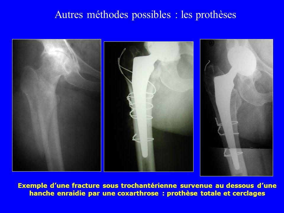 Autres méthodes possibles : les prothèses