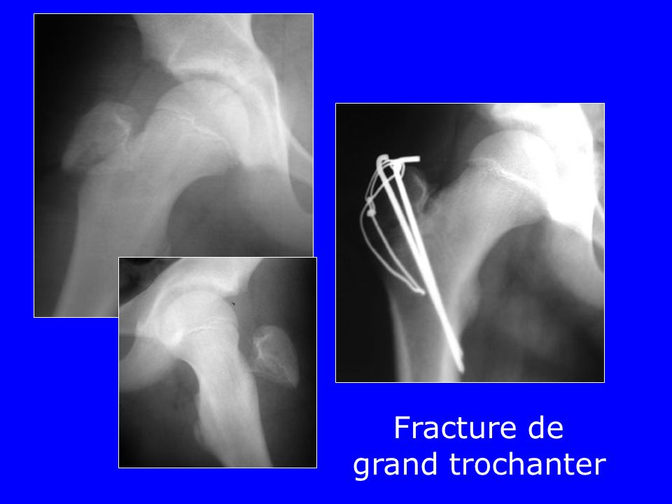 Fracture de grand trochanter