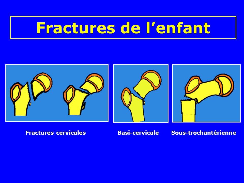 Fractures de l'enfant Fractures cervicales Basi-cervicale Sous-trochantérienne