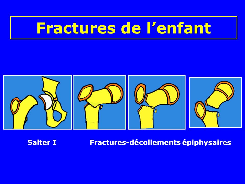 Fractures de l'enfant Salter I Fractures-décollements épiphysaires