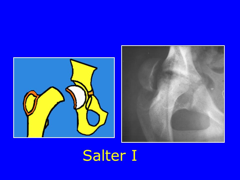 Salter I