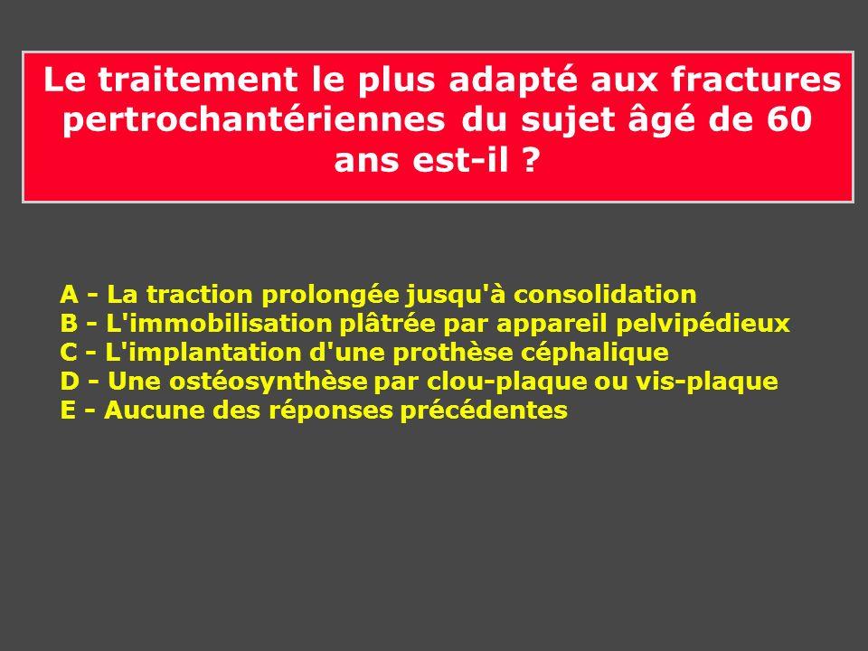 Le traitement le plus adapté aux fractures pertrochantériennes du sujet âgé de 60 ans est-il