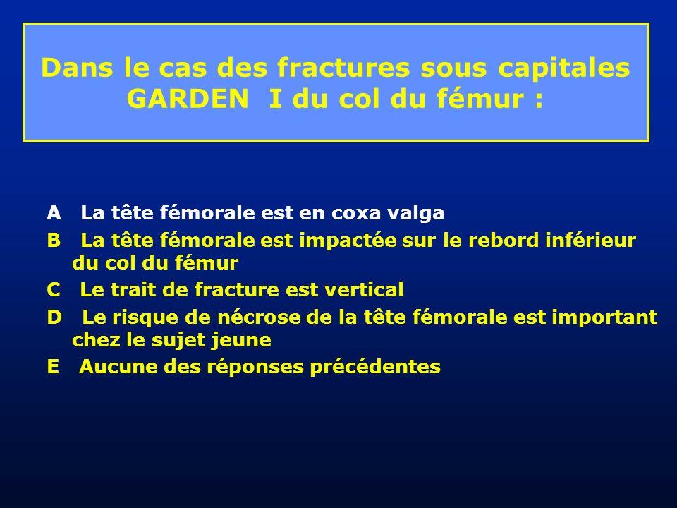 Dans le cas des fractures sous capitales GARDEN I du col du fémur :