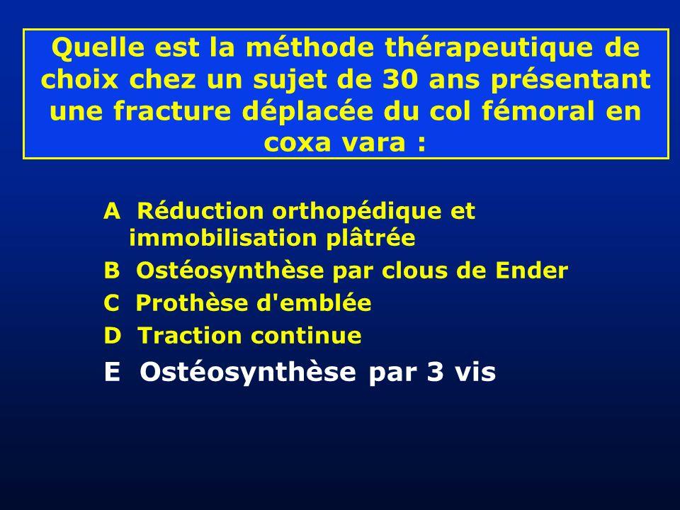 E Ostéosynthèse par 3 vis