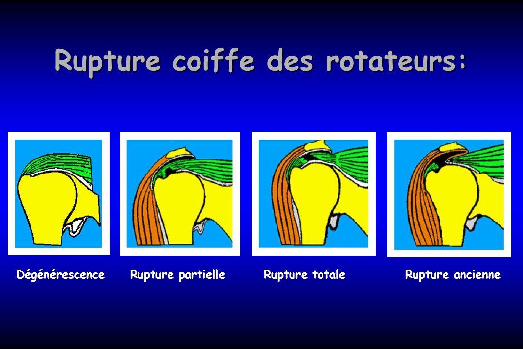 Rupture coiffe des rotateurs: