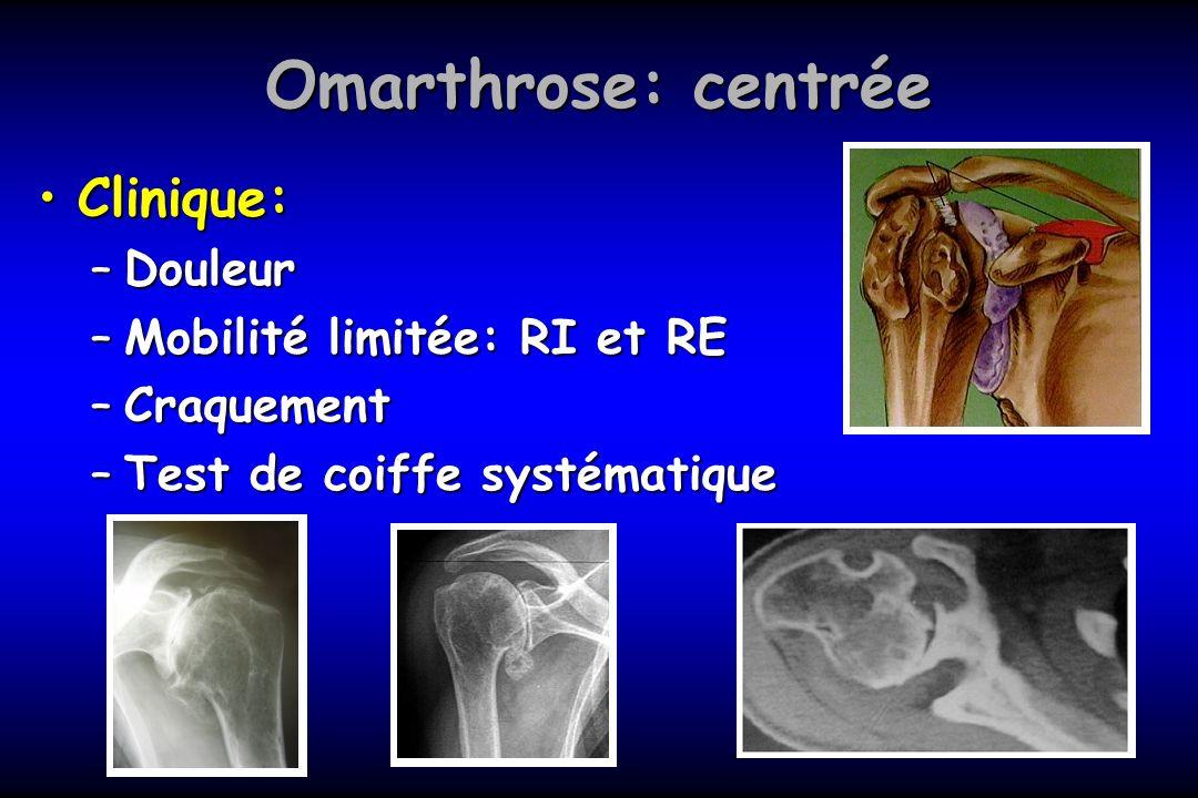 Omarthrose: centrée Clinique: Douleur Mobilité limitée: RI et RE