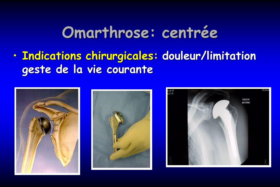 Omarthrose: centrée Indications chirurgicales: douleur/limitation geste de la vie courante