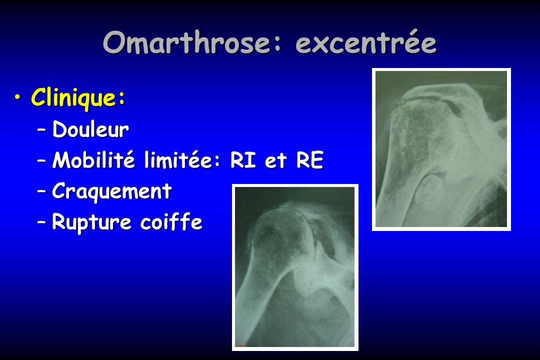 Omarthrose: excentrée