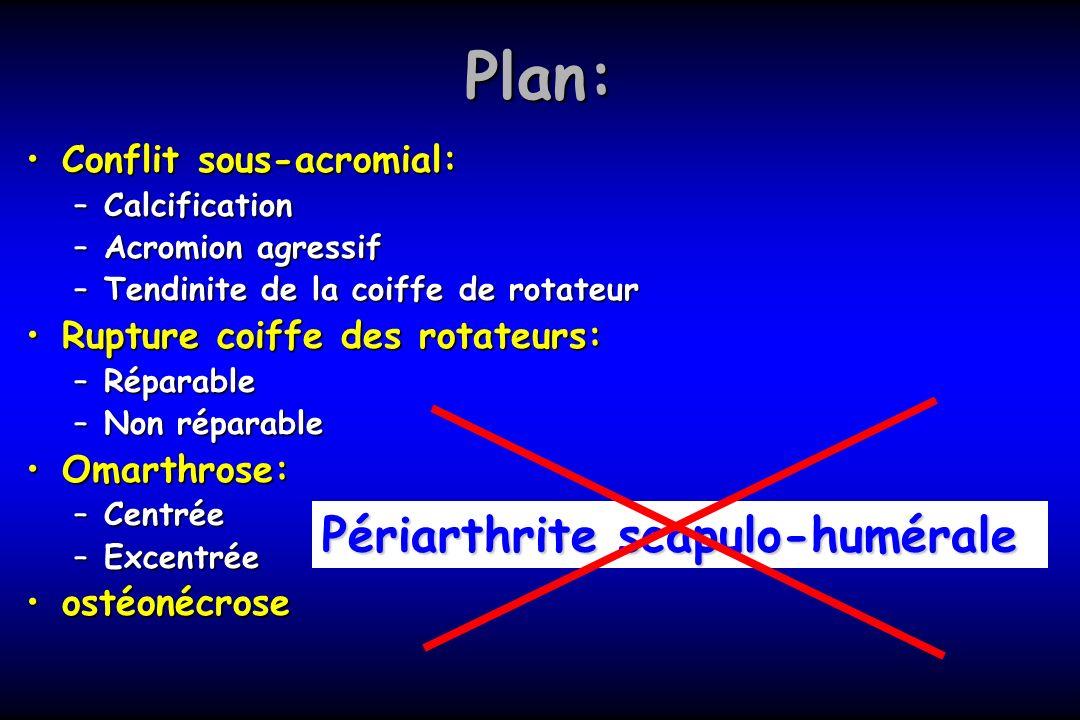 Plan: Périarthrite scapulo-humérale Conflit sous-acromial: