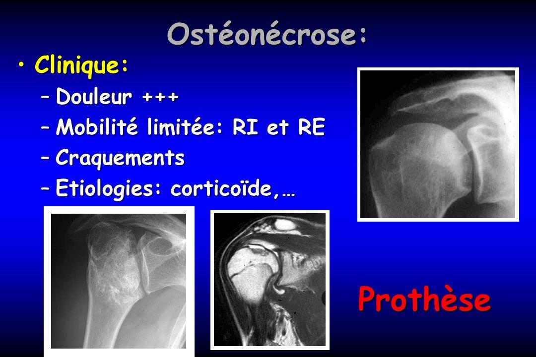 Prothèse Ostéonécrose: Clinique: Douleur +++