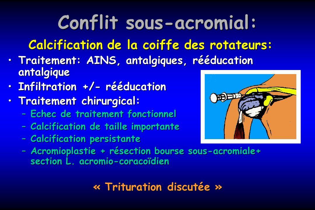 Conflit sous-acromial: