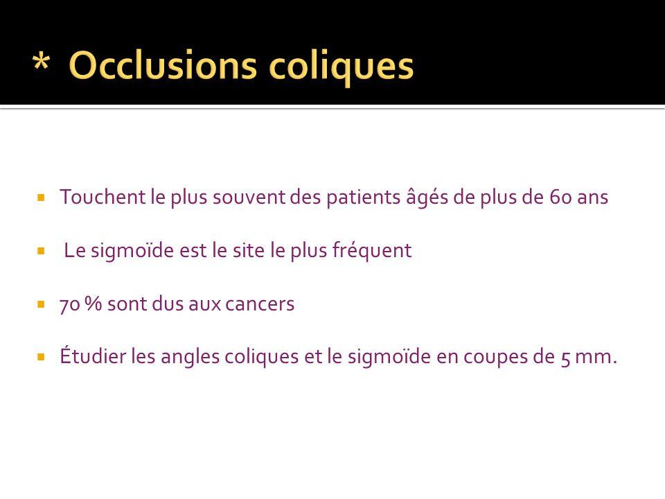 * Occlusions coliques Touchent le plus souvent des patients âgés de plus de 60 ans. Le sigmoïde est le site le plus fréquent.
