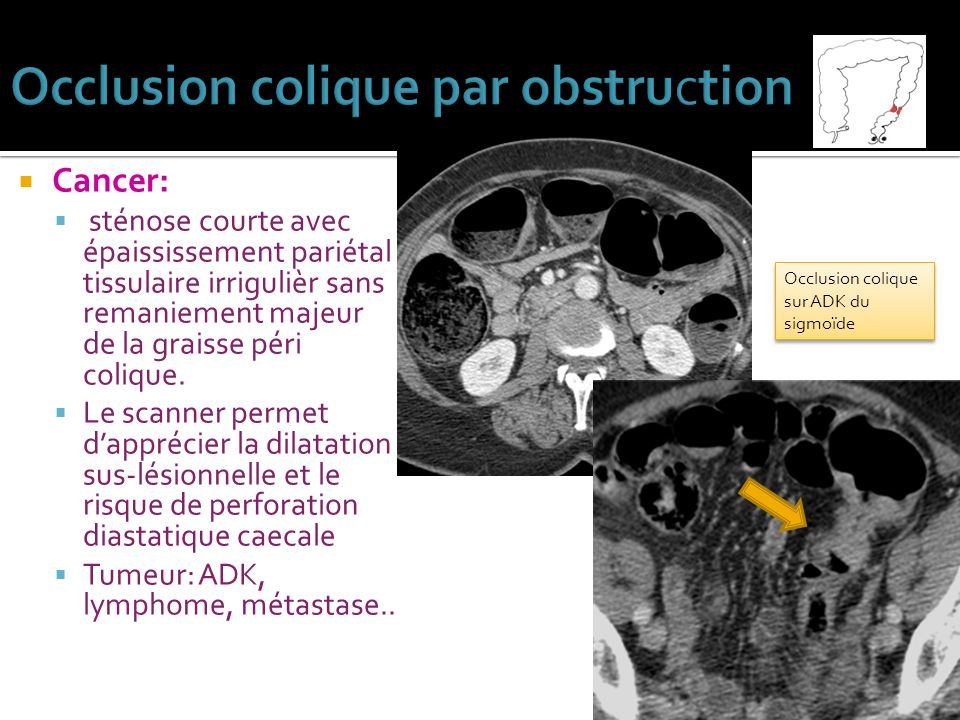 Occlusion colique par obstruction