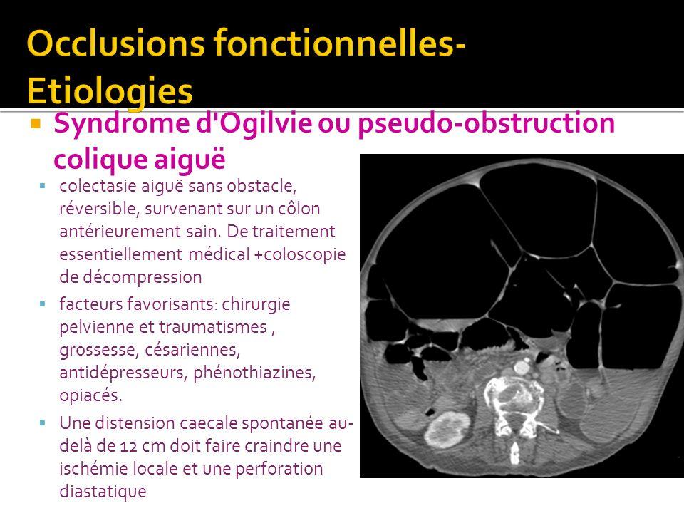 Occlusions fonctionnelles- Etiologies