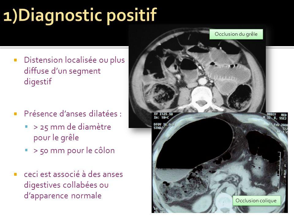 1)Diagnostic positif Occlusion du grêle. Distension localisée ou plus diffuse d'un segment digestif.