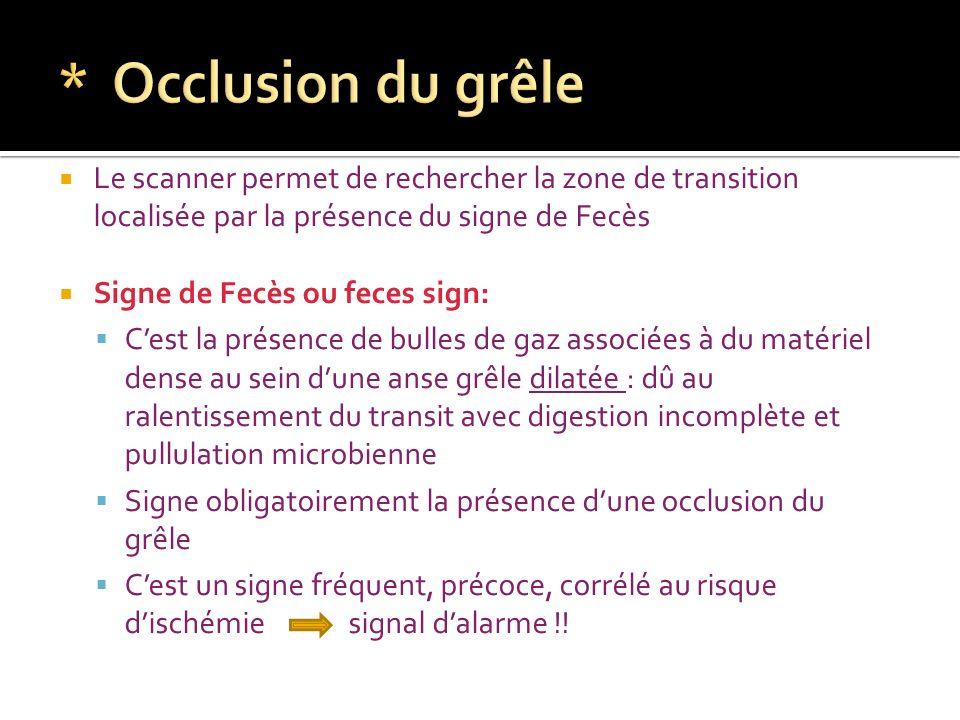 * Occlusion du grêle Le scanner permet de rechercher la zone de transition localisée par la présence du signe de Fecès.
