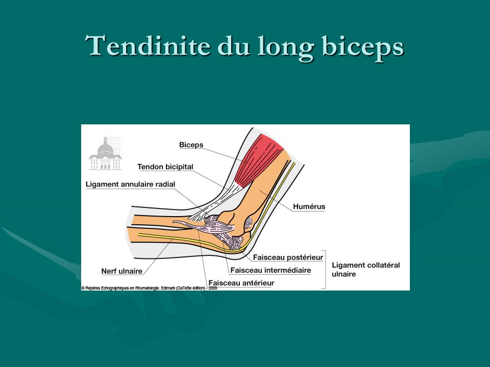 Tendinite du long biceps
