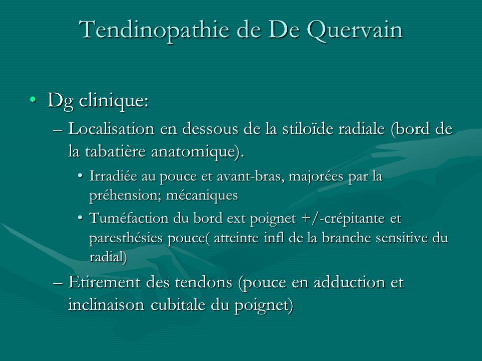 Tendinopathie de De Quervain