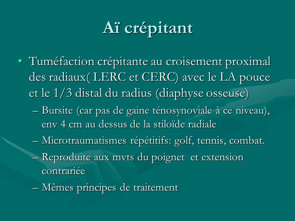 Aï crépitant Tuméfaction crépitante au croisement proximal des radiaux( LERC et CERC) avec le LA pouce et le 1/3 distal du radius (diaphyse osseuse)