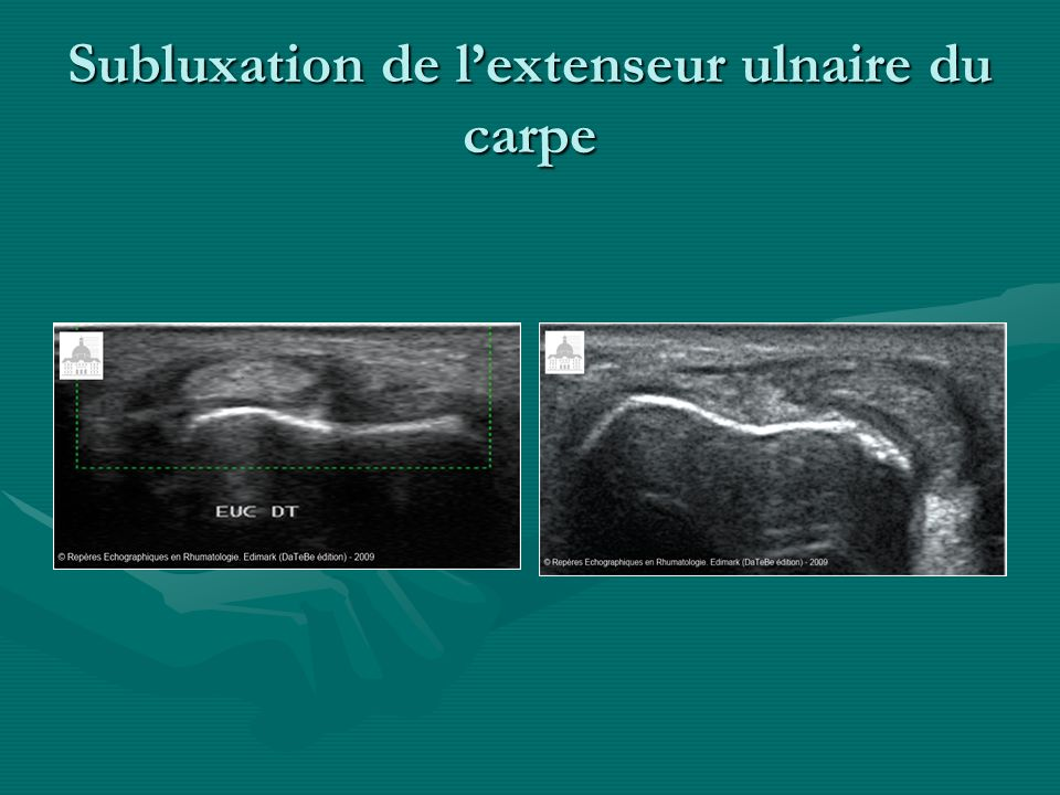 Subluxation de l'extenseur ulnaire du carpe