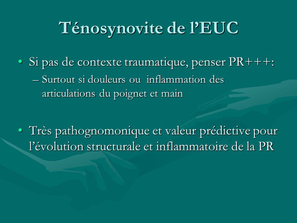 Ténosynovite de l'EUC Si pas de contexte traumatique, penser PR+++: