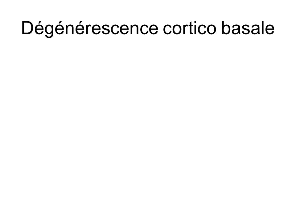 Dégénérescence cortico basale