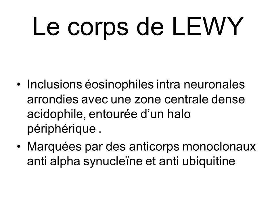 Le corps de LEWY Inclusions éosinophiles intra neuronales arrondies avec une zone centrale dense acidophile, entourée d'un halo périphérique .