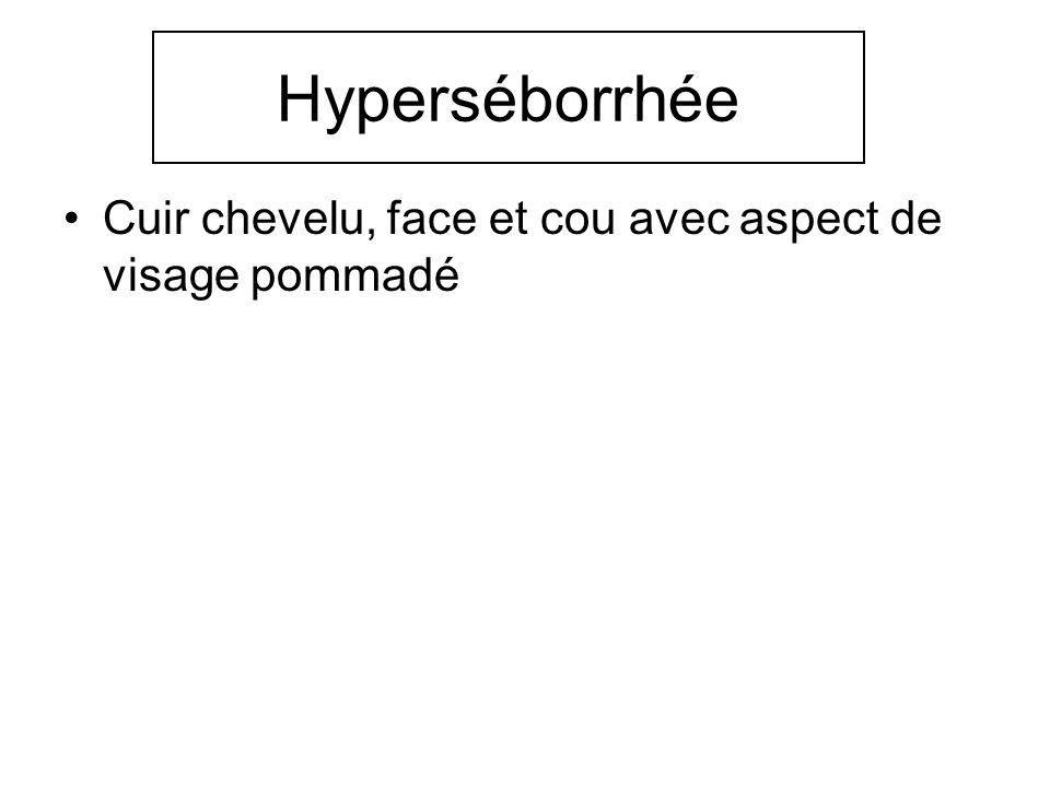 Hyperséborrhée Cuir chevelu, face et cou avec aspect de visage pommadé