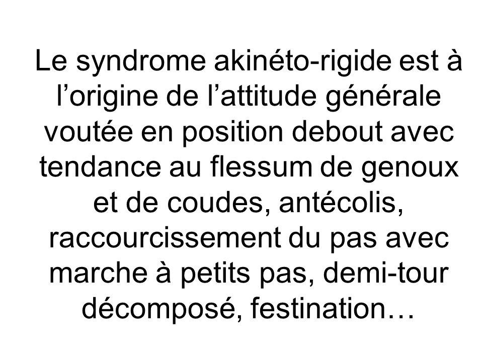 Le syndrome akinéto-rigide est à l'origine de l'attitude générale voutée en position debout avec tendance au flessum de genoux et de coudes, antécolis, raccourcissement du pas avec marche à petits pas, demi-tour décomposé, festination…