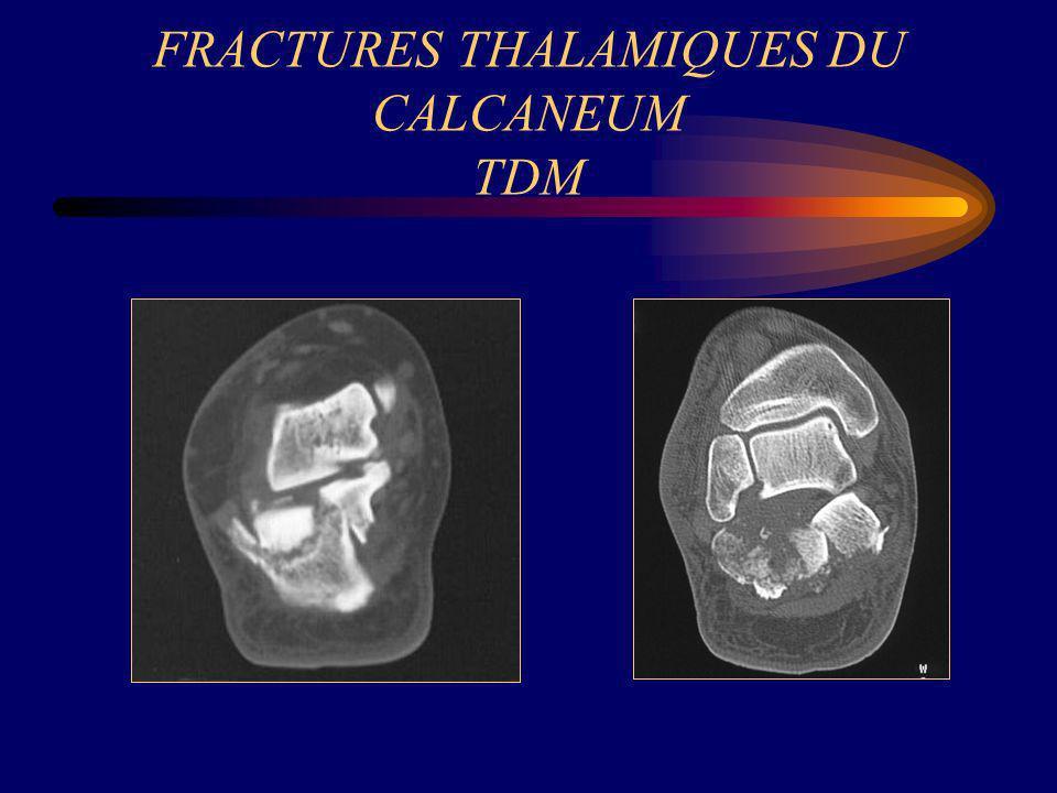 FRACTURES THALAMIQUES DU CALCANEUM TDM