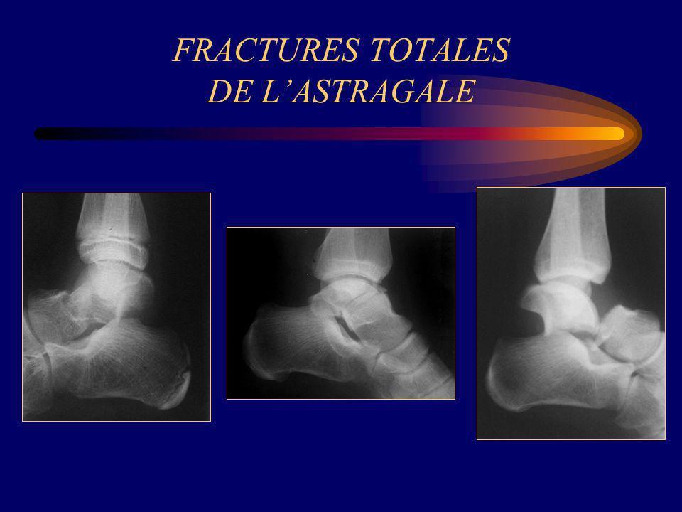 FRACTURES TOTALES DE L'ASTRAGALE