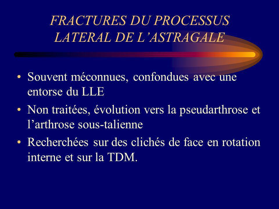 FRACTURES DU PROCESSUS LATERAL DE L'ASTRAGALE