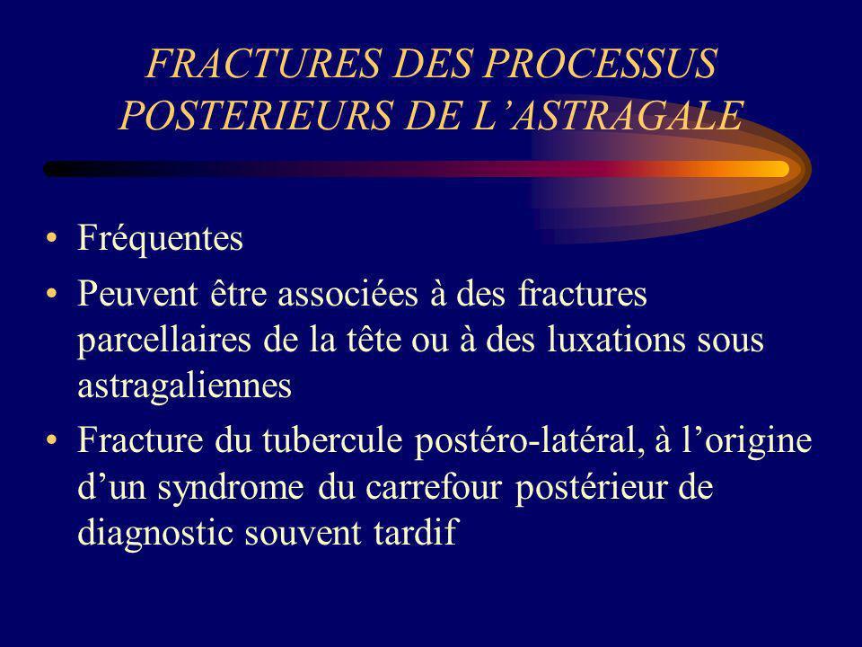 FRACTURES DES PROCESSUS POSTERIEURS DE L'ASTRAGALE