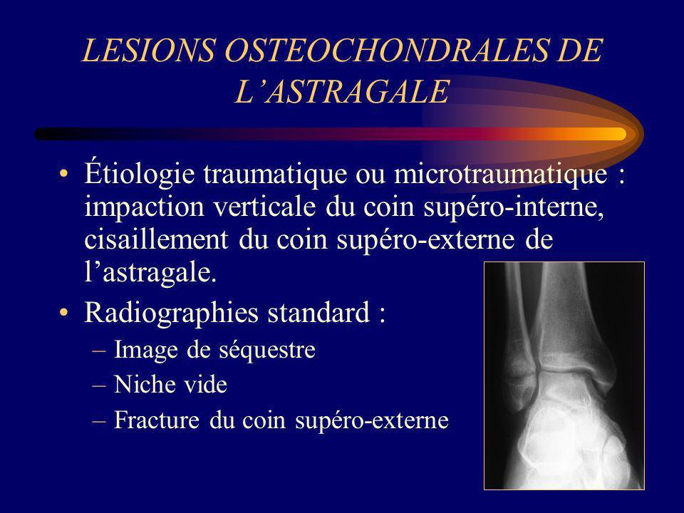 LESIONS OSTEOCHONDRALES DE L'ASTRAGALE