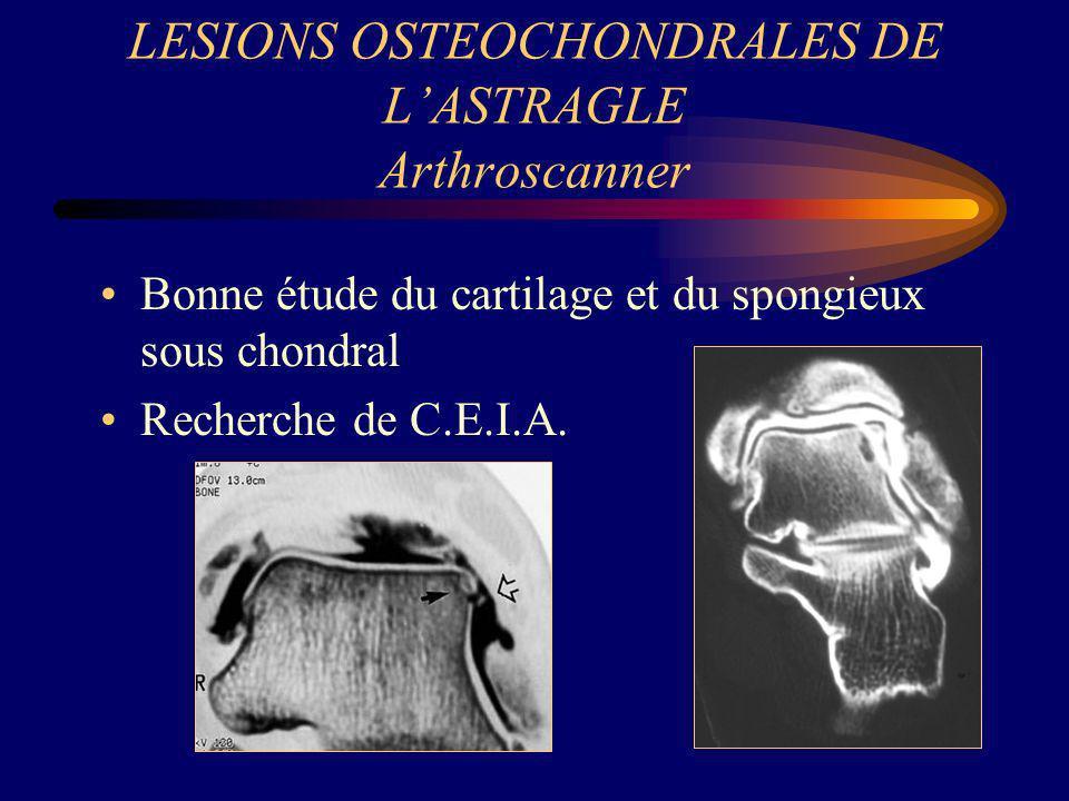 LESIONS OSTEOCHONDRALES DE L'ASTRAGLE Arthroscanner