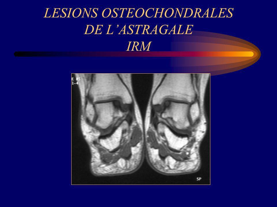 LESIONS OSTEOCHONDRALES DE L'ASTRAGALE IRM