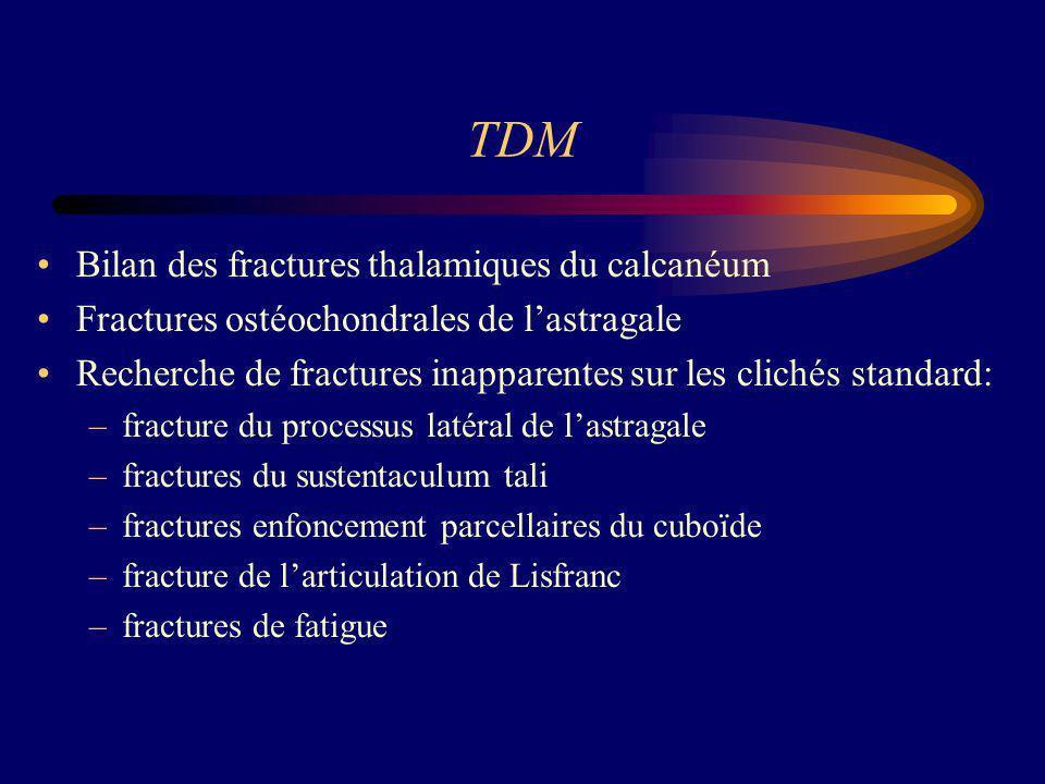 TDM Bilan des fractures thalamiques du calcanéum