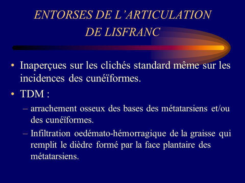 ENTORSES DE L'ARTICULATION DE LISFRANC