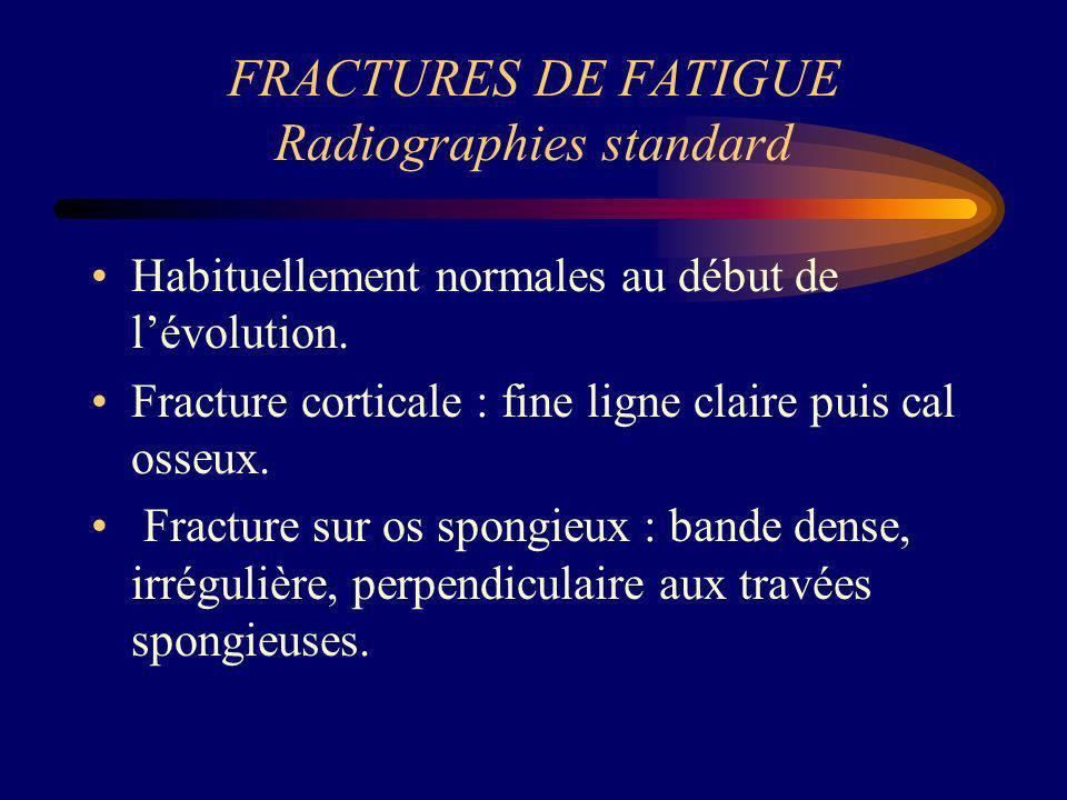 FRACTURES DE FATIGUE Radiographies standard
