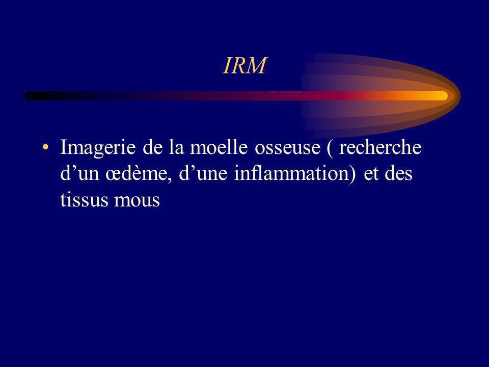 IRM Imagerie de la moelle osseuse ( recherche d'un œdème, d'une inflammation) et des tissus mous