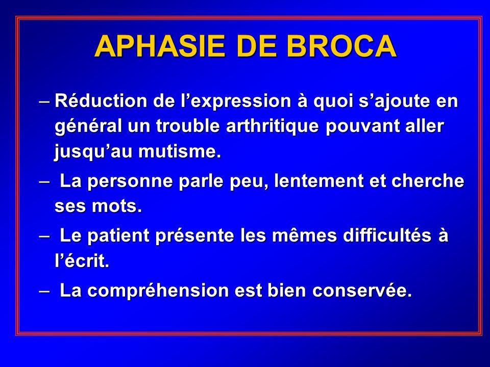 APHASIE DE BROCA Réduction de l'expression à quoi s'ajoute en général un trouble arthritique pouvant aller jusqu'au mutisme.