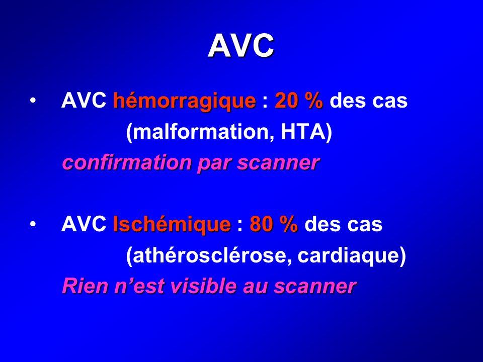 AVC AVC hémorragique : 20 % des cas (malformation, HTA)