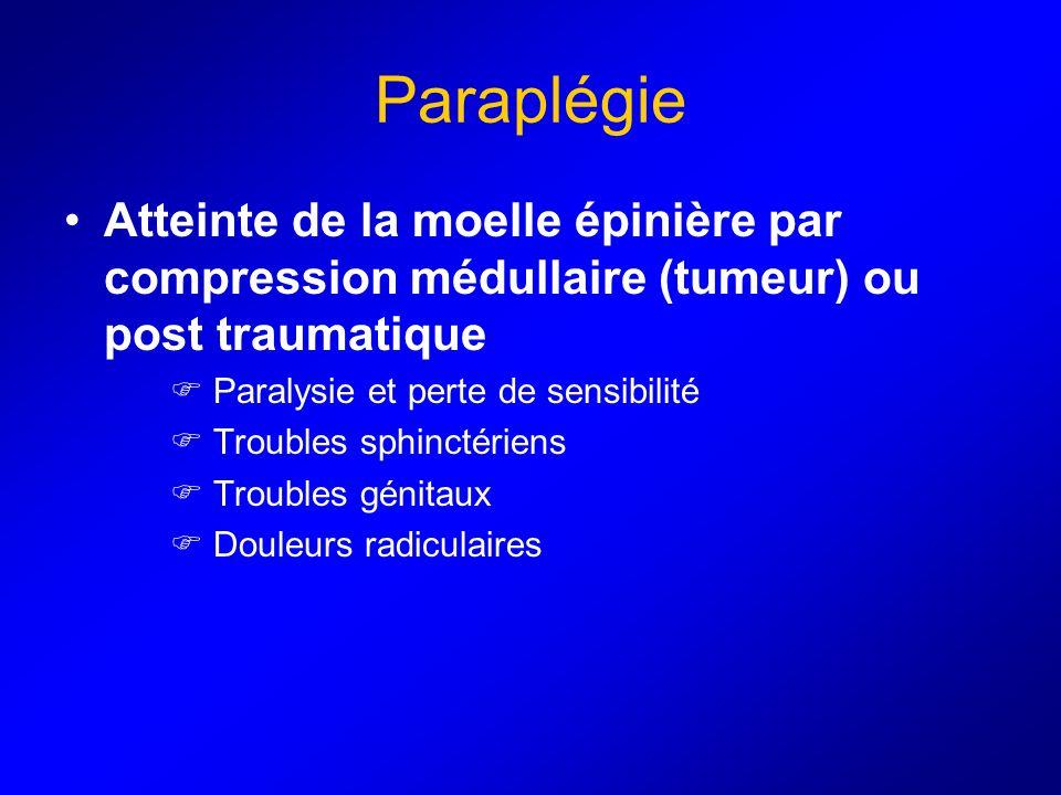 Paraplégie Atteinte de la moelle épinière par compression médullaire (tumeur) ou post traumatique. Paralysie et perte de sensibilité.