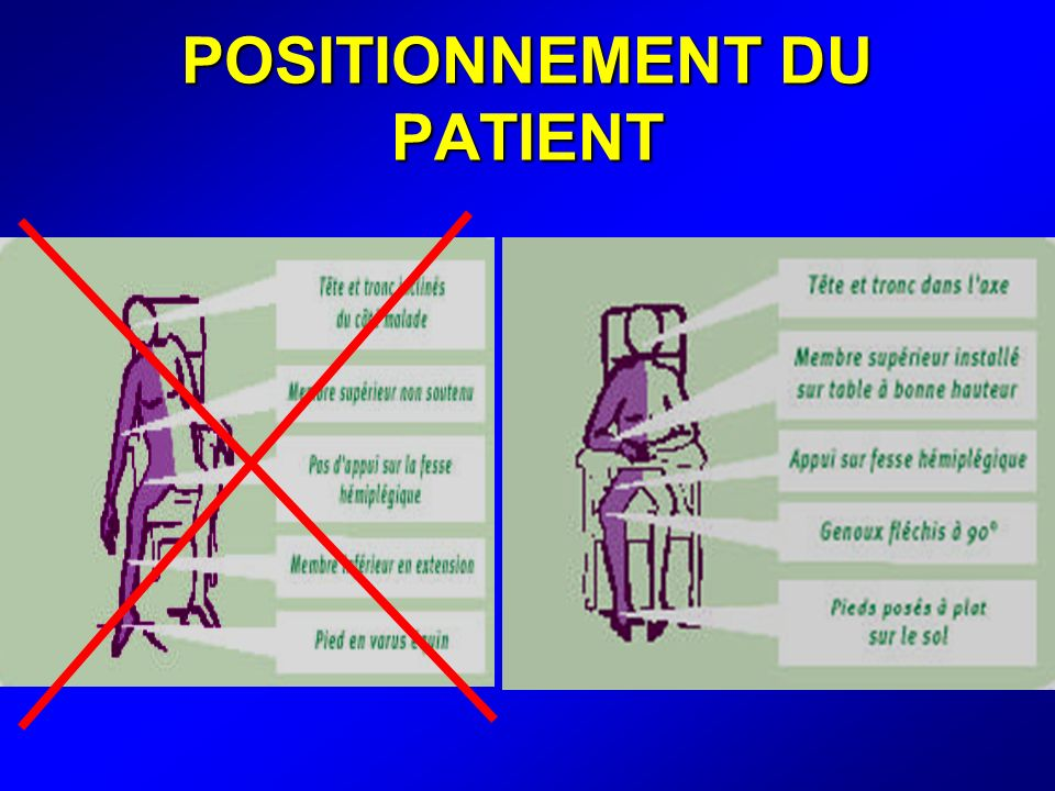 POSITIONNEMENT DU PATIENT
