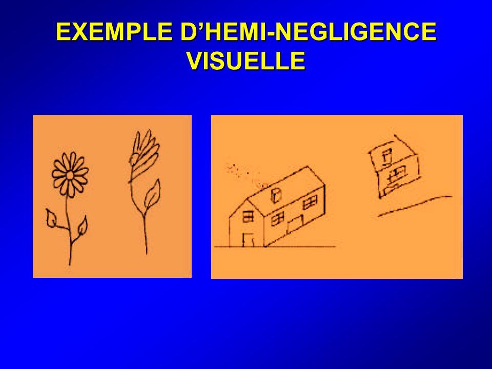 EXEMPLE D'HEMI-NEGLIGENCE VISUELLE