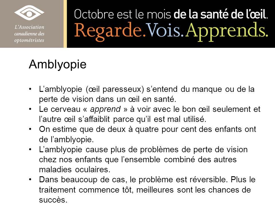 Amblyopie L'amblyopie (œil paresseux) s'entend du manque ou de la perte de vision dans un œil en santé.