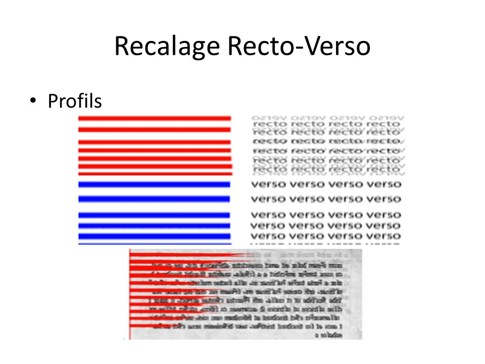 Recalage Recto-Verso Profils